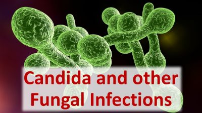 Candida Fungal Infection