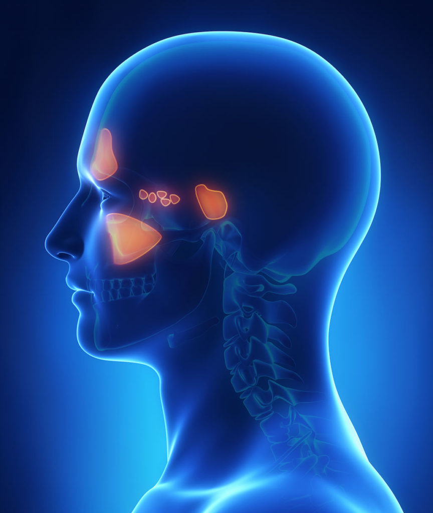 sinusitis infection