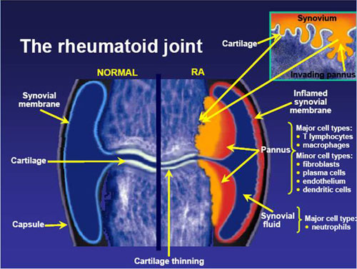the cause effects and treatment of rheumatoid arthritis The management of rheumatoid arthritis has moved to a completely different   for ra, but seems less likely to cause infections as a side effect.