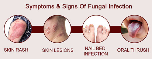 Types of Fungal Infections